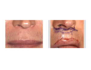 Cupid's Bow Upper Lip Augmentation Surgery Dr Barry Eppley Indianapolis