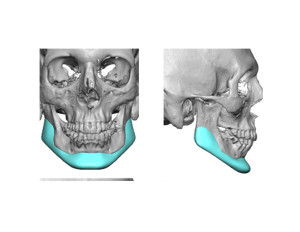 Custom Jawline Implant Design for Jaw Reconstruction Dr Barry Eppley Indianapolis