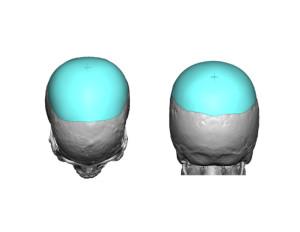 Custom Skull Implant Cross marking on design Dr Barry Eppley Indianapolis
