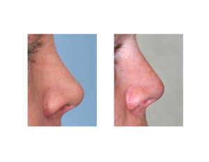 Dorsal Rib Graft Rhinoplasty Dr Barry Eppley Indianapolis