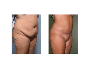 Extended Tummy Tuck results oblique view Dr Barry Eppley Indianapolis