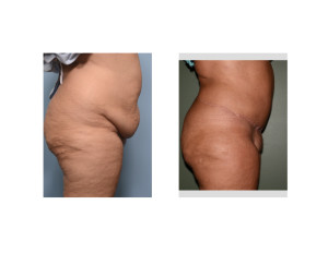 Extended Tummy Tuck results side view Dr Barry Eppley Indianapolis