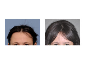 Extreme Occipital Augmentation result front view Dr Barry Eppley Indianapolis