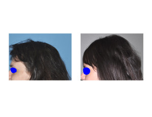 Extreme Occipital Augmentation result side view