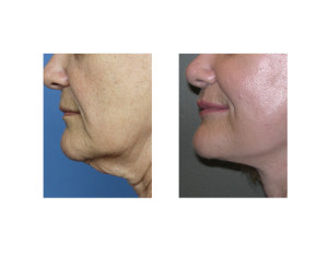Facelift Surgery Dr Barry Eppley Indianapolis