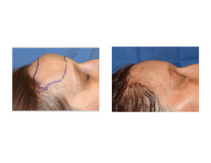 Forehead Reduction with Hairline Advancement intraop side view Ddr Barry Eppley Indianapolis