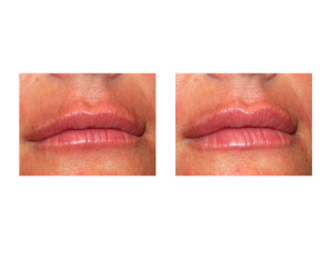 Lip Implants result front view Dr Barry Eppley Indianapolis
