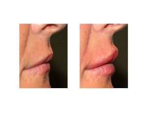 Lip Implants result side view Dr Barry Eppley Indianapolis