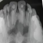 Nasopalatine Cyst x-ray Dr Barry Eppley Indianapolis