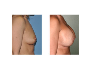 Nipple Lift Breast Augmentation results side view Dr Barry Eppley Indianapolis