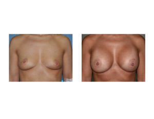 Nipple Lift Breast Augmnetation results frofnt view Dr Barry Eppley Indianapolis