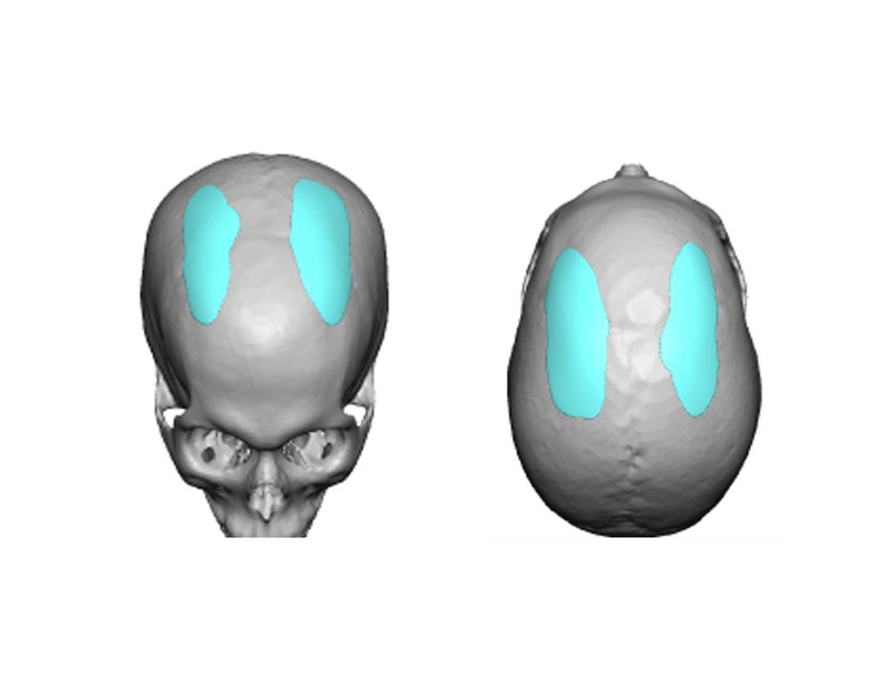 Blog ArchiveCase Study - Custom Parasagittal Skull Implants -