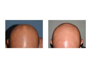 Skull Bump Reduction result top view Dr Barry Eppley Indianapolis