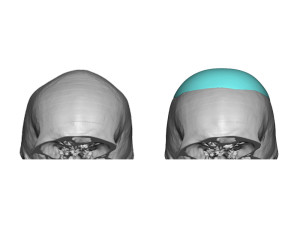 Skull Implant for Sagittal Ridge Deformity design Dr Barry Eppley Indianapolis