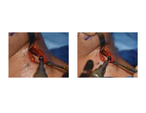 Tracheal Reduction by Burring Dr Barry Eppley Indianapolis
