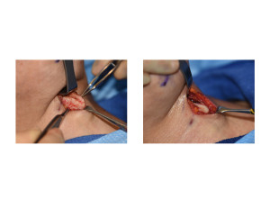 Tracheal Shave by Burring Reduction Dr Barry Eppley Indianapolis