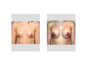 Tuberous Breast Augmentation result Dr Barry Eppley Indianapolis