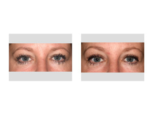 Upper Blepharoplasty (Eyelid Lifts) under Local Anesthesia Dr Barry Eppley Indianapolis