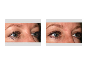 Upper Blepharoplasty (Eyelid Lifts) under Local Anesthesia oblique view Dr Barry Eppley Indianapolis