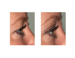 Upper Blepharoplasty (Eyelid Lifts) under Local Anesthesia side view Dr Barry Eppley Indianapolis