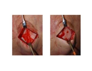 Vertex Skull Bump reduced intraop Dr Barry Eppley Indianapolis