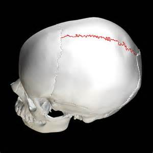 sagittal suture fusion - HD 2250×2250