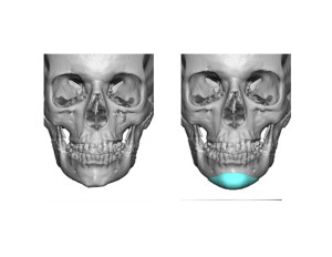 Custom Chin Implant design front view Dr Barry Eppley Indianapolis