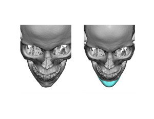 Custom Chin Implant design top view Dr Barry Eppley Indianapolis