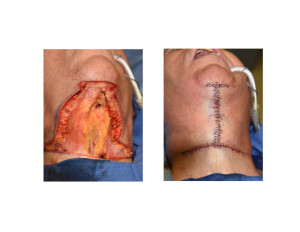 Direct Necklift Excision and Closure intraop Dr Barry Eppley Indianapolis