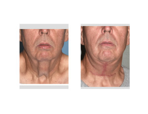 Direct Necklift after Massive Weight Loss result front view Dr Barry Eppley Indianapolis
