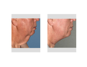 Direct Necklift after Massive Weight Loss result side view Dr Barry Eppley Indianapolis