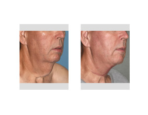 Direct Necklift result obloque view Dr Barry Eppley Indianapolis