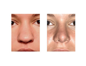 Ethnic Rhinoplasty result front view