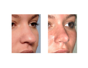 Ethnic Rhinoplasty result oblique view