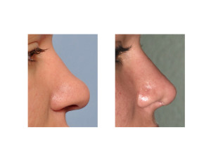 Ethnic Rhinoplasty result side view