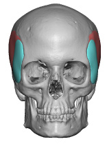 Extended Anterior Temporal Implant Design front view Dr Barry Eppley