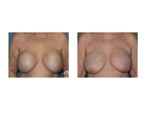 Fat Grafting after Removal of 40 Year Old Breast Implants result front view Dr Barry Eppley Indianapolis