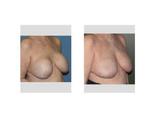 Fat Grafting after Removal of 40 Year Old Breast Implants result oblique view Dr Barry Eppley Indianapolis