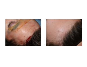 Incision and Scar Healing of Endoscopic Brow Bone Implant Placement Dr Barry Eppley Indianapolis