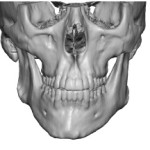 Jaw Asymmetry 3D CT scan front view Dr Barry Eppley Indianapolis