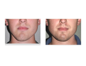 Jawline Asymmetry Correction result front view Dr Barry Eppley Indianapolis