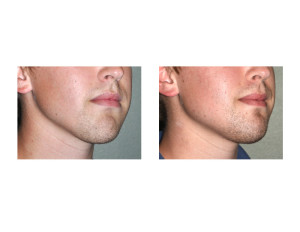 Jawline Asymmetry Correction result oblique view Dr Barry Eppley Indianapolis