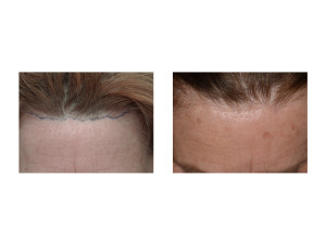 Pretrichial Browlift Scar result long-term Dr Barry Eppley Indianapolis