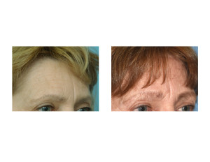 Ten Year Pretrichial Browlift result oblique view Dr Barry Eppley Indianapolis