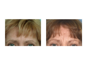 Ten Year Pretriochial Browlift result front view Dr Barry Eppley Indianapolis