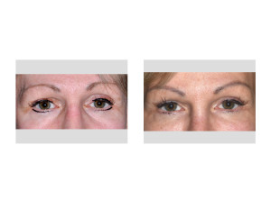 Transpalpebral Orbital Rim Contouring Right Eye result front view Dr Barry Eppley Indianapolis
