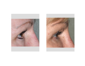Transpalpebral Orbital Rim Contouring Right Eye result side view Dr Barry Eppley Indianapolis