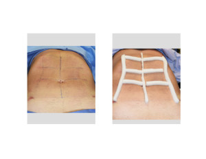 Abdominal Etching dressing intraop front view Dr Barry Eppley Indianapolis