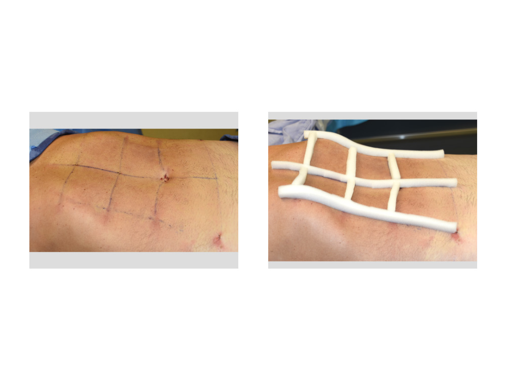 Abdominal Etching Procedure Recovery Results