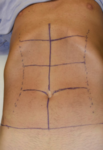 Abdominal Etching pattern Dr Barry Eppley Indianapolis